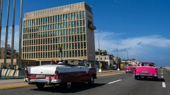 US Embassy workers in Cuba found to have brain abnormalities, report says