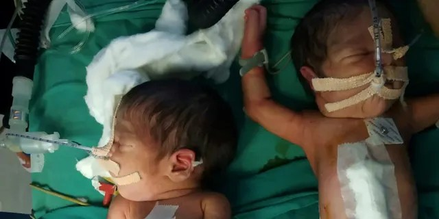They are set to be discharged later this week and will be named in a traditional ritual at home.