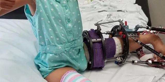 Victoria Komada hat eine beidseitige Tibia-Hemimelia - eine angeborene Deformität, bei der Babys mit deformierten Beinen und fehlenden Knochen geboren werden.