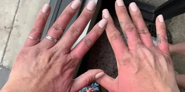 """Amber Prepchuk, 34, said she suffered a painful """"margarita burn"""" after squeezing limes to make popular drink and then going in the sun."""