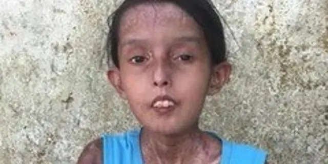 Dailis, age 15 has progressive systemic sclerosis lives in a village three hours outside of Caracas in a single-mother household. She is also suffering from severe malnutrition, is so weak that she cannot walk, and is barely able to talk.