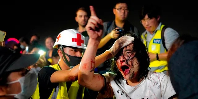 A medic treats a pro-Beijing demonstrator after he was hit by protesters Saturday. (AP Photo/Vincent Yu)