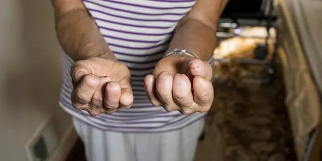 Despite losing her fingertips and legs, she said she still loves gardening.