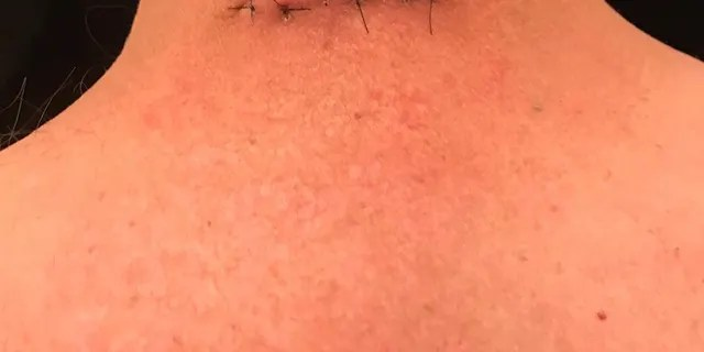 Le cou de Ryan après l'une de ses chirurgies initiales.