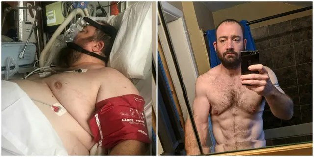 (L-R) Adam Harris in hospital before his dramatic weight loss in 2017 and in fantastic shape in 2019.