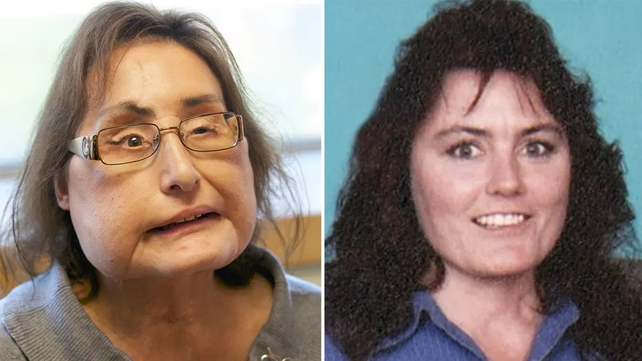 Ohio Woman Who Received First Us Face Transplant Dead At