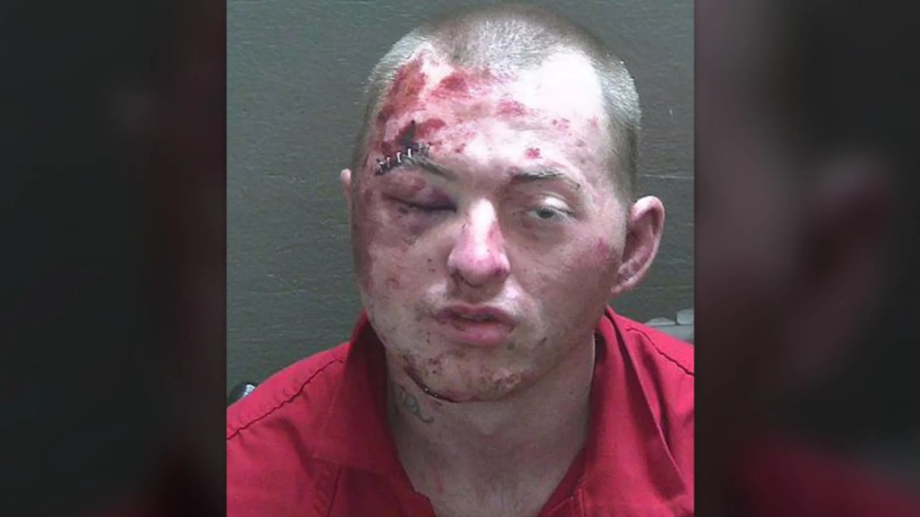 You shouldn't fight the police..Florida man badly loses fight with police, K-9