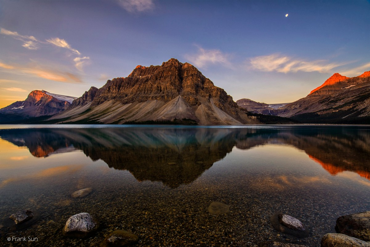 Bow Lake Photo acupuncture