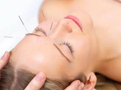 Acupuncture calgary 03