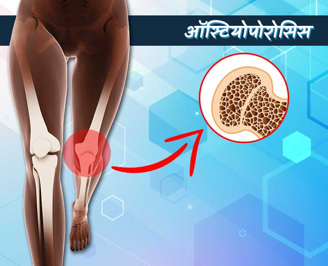 Home Remedies For Osteoporosis