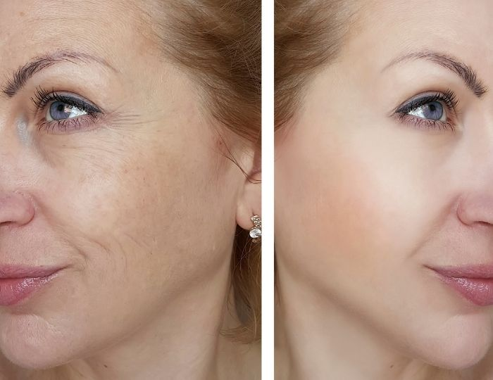 Lasers – ABA Cosmetic