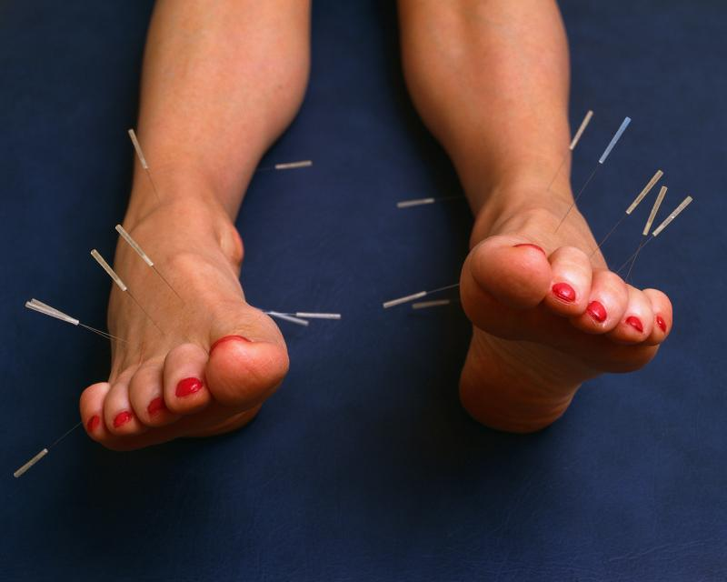 Image of needles needles inserted into two feet.