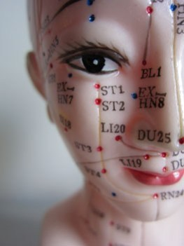 Image of an acupuncture model showing acupuncture points on the face commonly used to treat facial paralysis and for facial rejuvenation.