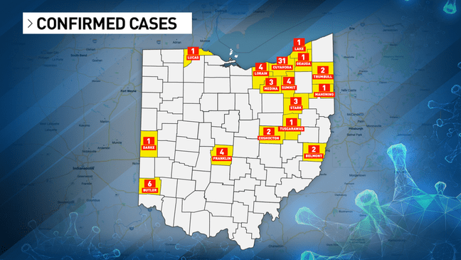 67 confirmed coronavirus cases in Ohio, 17 people hospitalized | WSYX