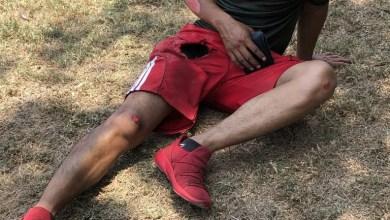 Photo of Se accidenta joven motociclista frente al Ayuntamiento