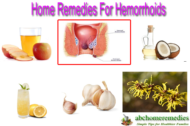Home Remedies For Hemorrhoids-2424