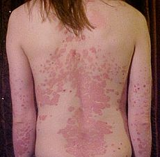 11 Effective Home Remedies for Psoriasis