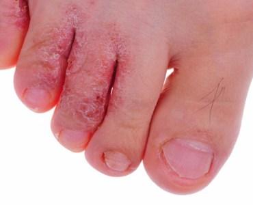 athletes_foot