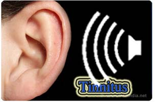 Home remedies for Tinnitus