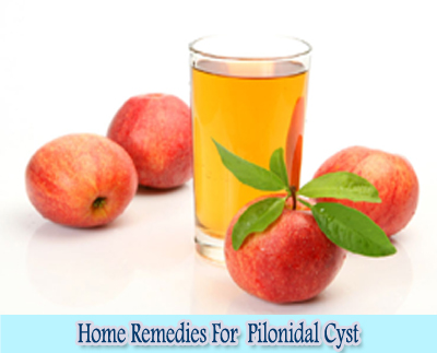Apple Cider Vinegar : Home Remedies For Pilonidal Cyst