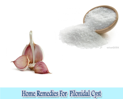 Garlic And Epsom Salt : Home Remedies For Pilonidal Cyst