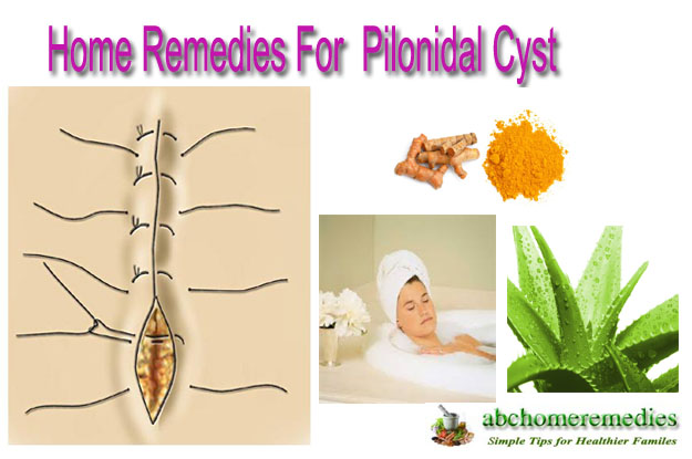 Home-Remedies-For-Pilonidal-Cyst