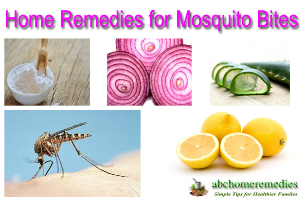 Home-Remedies for Mosquito Bites