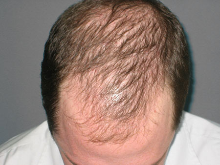15 Helpful Home Remedies for Alopecia