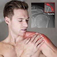 Home remedies for bursitis