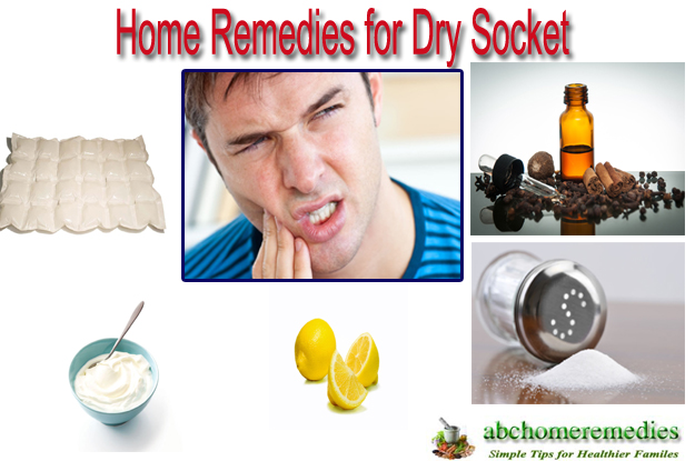 Home Remedies for Dry Socket