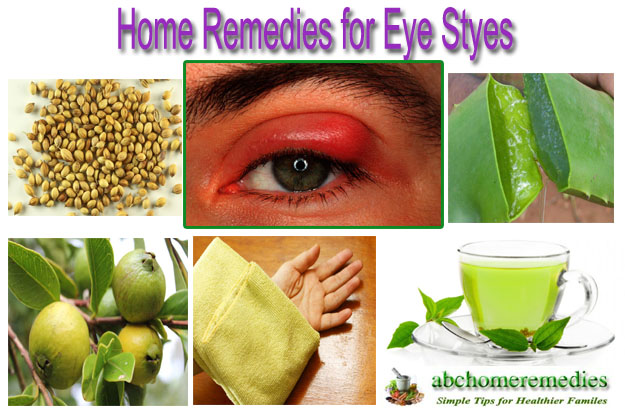 Home Remedies for Eye Styes