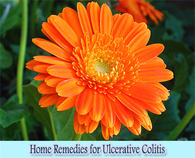 Calendula Flower : Home Remedies for Ulcerative Colitis
