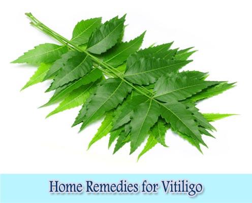 Neem Leaves : Home Remedies for Vitiligo
