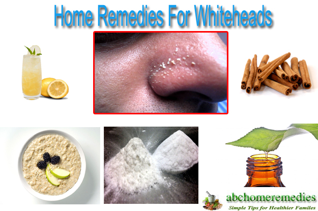 Home Remedies For Whiteheads