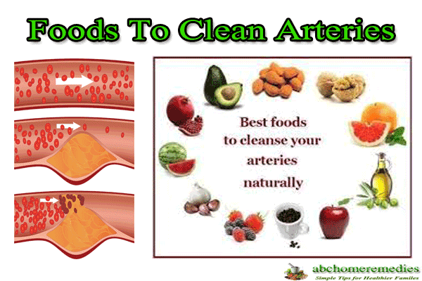 Foods-To-Clean-Arteries