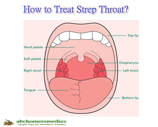 Can You Treat Strep Throat At Home
