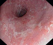 Colitis—Inflammatory Bowel Diseases and Other Forms of ...