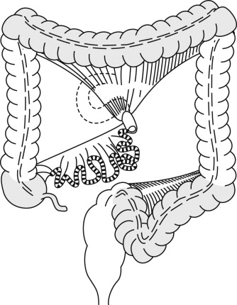 Diagnostic colonoscopy   Abdominal Key