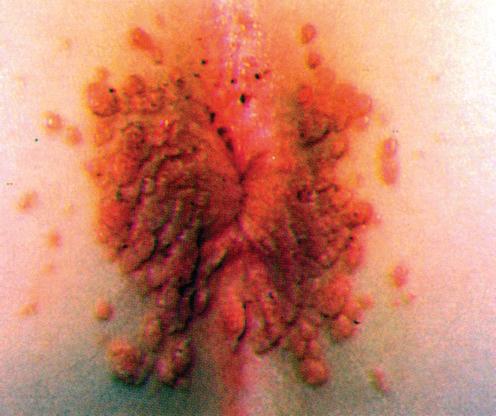 condyloma acuminatum e