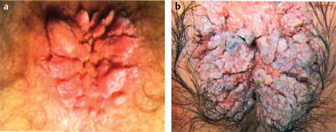 condyloma acuminata labor condiloame în tratamentul bărbaților