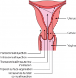 Chapter 6 – Analgesia and Anaesthesia for Hysteroscopy