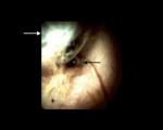 Operator Cholangioscopy