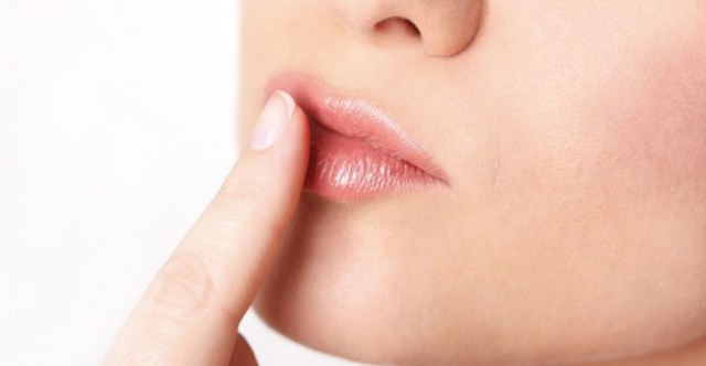 upper lip discoloration remedies