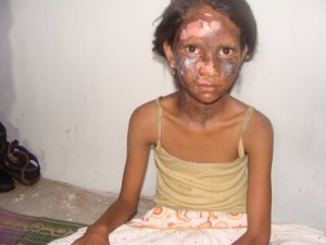 Christian girl from Orissa, India