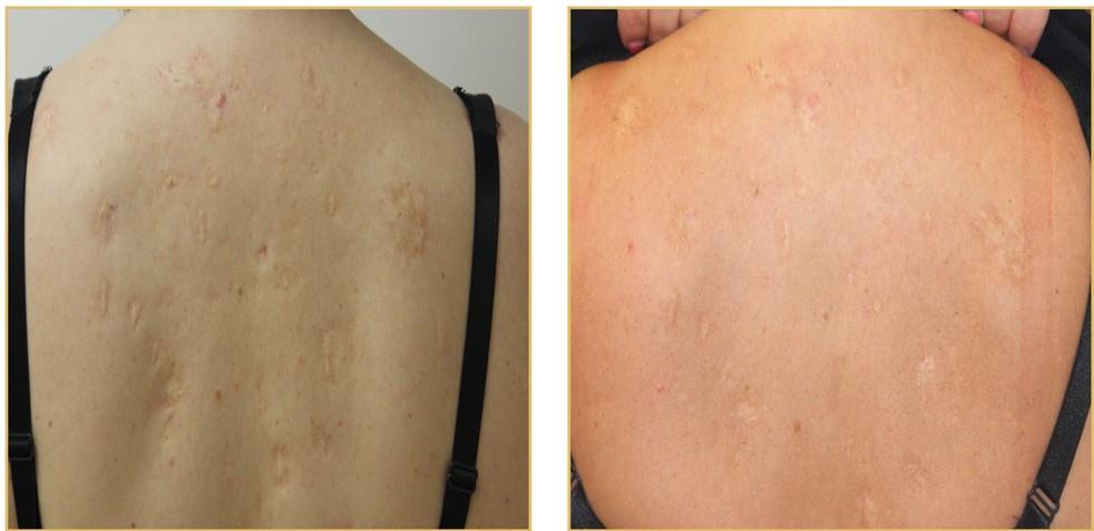 Deep Scars - Back