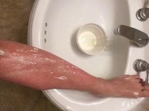My leg..an uneven burn at that..