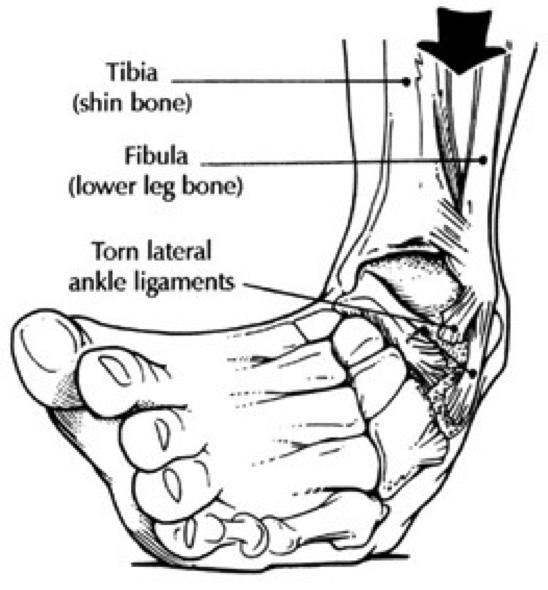 Anterior talo-fibular ligament (ATFL) tear