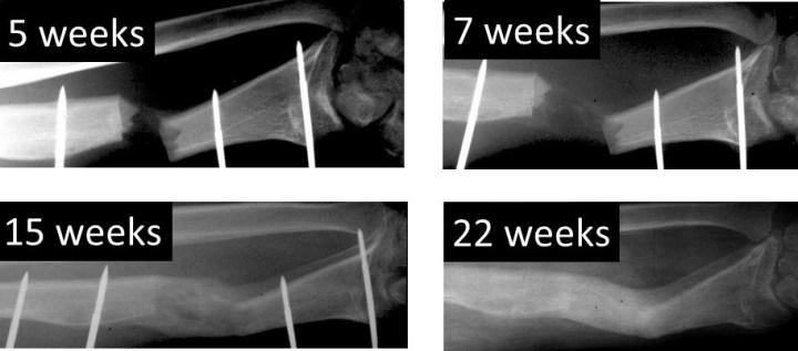 18-02-13 forearm Ilizarov case sequential xrays