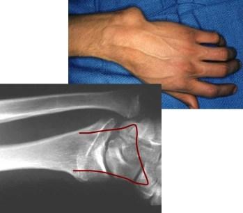 18-02-13 forearm Ilizarov case xr and clinical photo