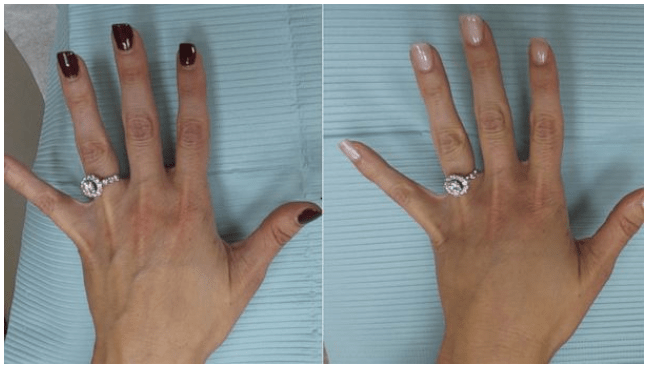 Hands After And Bbl